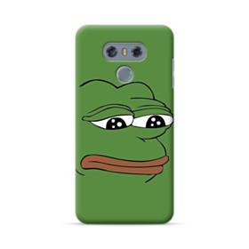 Sad Pepe frog LG G6 Case