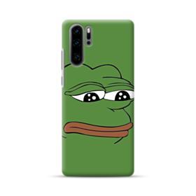 Sad Pepe frog Huawei P30 Pro Case