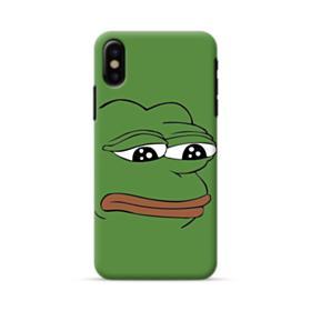 Sad Pepe frog iPhone X Case