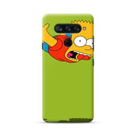 Bart in the air LG V40 ThinQ Case