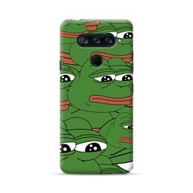 Sad Pepe frog seamless LG V40 ThinQ Case