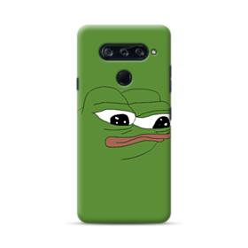 Sad Pepe frog LG V40 ThinQ Case