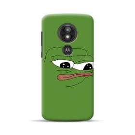 Sad Pepe frog Motorola Moto E5 Play Case