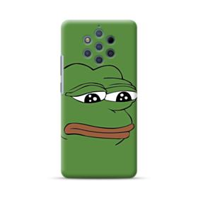 Sad Pepe frog Nokia 9 PureView Case