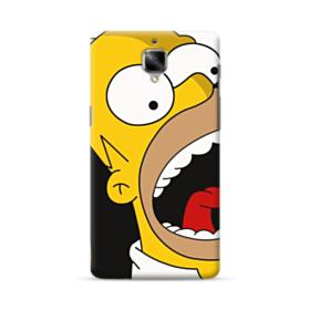 Simpsons Shout OnePlus 3 Case