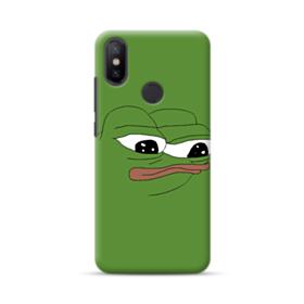 Sad Pepe frog Xiaomi Mi A2 Case